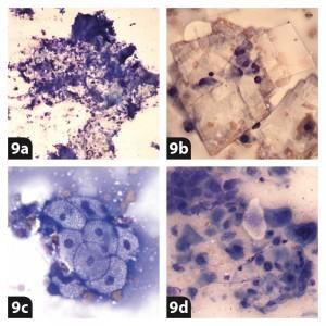 Epidermal Inclusion Cyst Cytology Dog Basic cytology ...