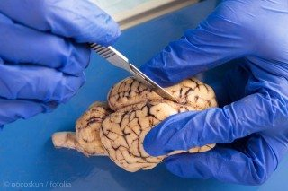 dissecting a cow's brain