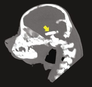 A CT image of the microchip in the puppy's brain. Image: The RVC QMHA.