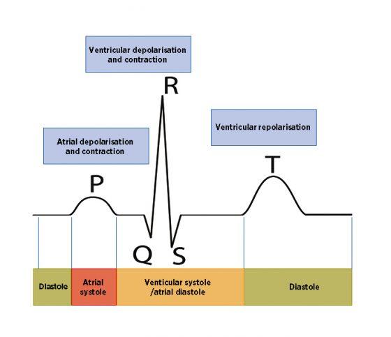 Nursing notes: electrocardiograms