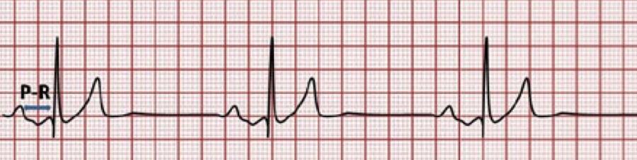 Nursing notes: cardiac arrhythmias