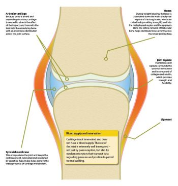 Overview of osteoarthritis
