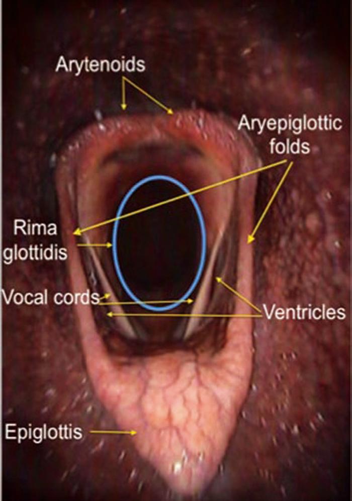 Horse Larynx Anatomy